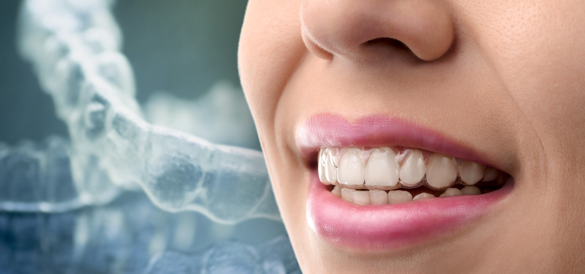 Close-up on Woman's Teeth in Invisalign Clear Aligners